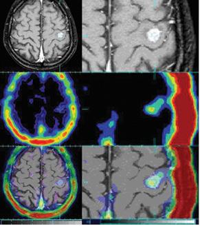 Оцінка ефективності застосування методики інтеграції даних ОФЕКТ/МРТ удіагностиці метастазів головного мозку