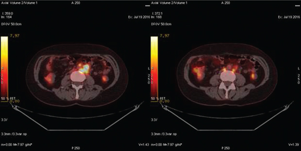 548 01 02 Роль ПЭТ КТ диагностики в раннем выявлении рецидива рака яичника