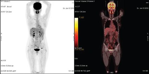 548 02 01 Роль ПЭТ КТ диагностики в раннем выявлении рецидива рака яичника