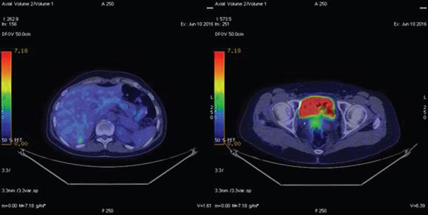 548 02 02 Роль ПЭТ КТ диагностики в раннем выявлении рецидива рака яичника