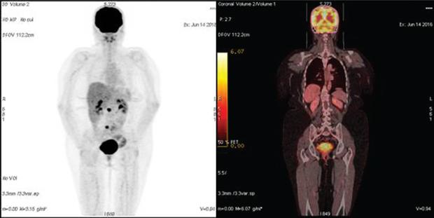 548 03 01 Роль ПЭТ КТ диагностики в раннем выявлении рецидива рака яичника