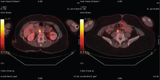 548 03 02 Роль ПЭТ КТ диагностики в раннем выявлении рецидива рака яичника