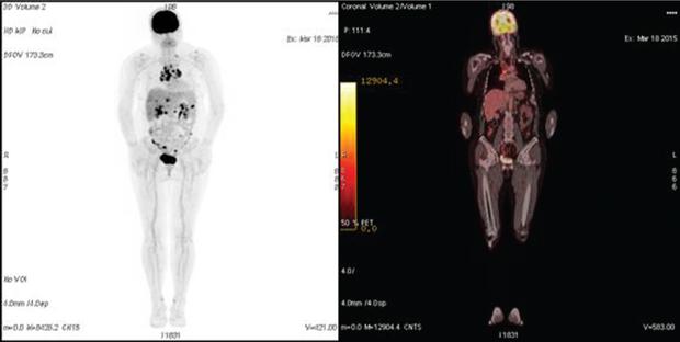 548 04 01 Роль ПЭТ КТ диагностики в раннем выявлении рецидива рака яичника