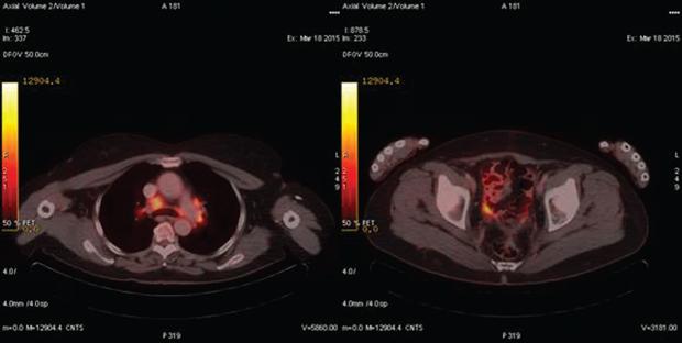 548 04 02 Роль ПЭТ КТ диагностики в раннем выявлении рецидива рака яичника
