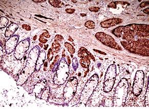 Імуногістохімічна діагностика нейроендокринних пухлин шлунково кишкового тракту (огляд літератури тавласні дослідження)