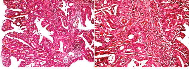 Перстневидно клеточная колоректальная карцинома (обзор литературы, случай изпрактики)