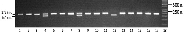 Вплив алельного поліморфізму гена <em>CCR5</em> наперебіг місцево поширеного раку грудної залози