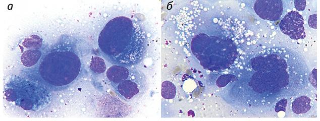 Цитоморфологические квантитативные признаки гепатоцеллюлярного рака