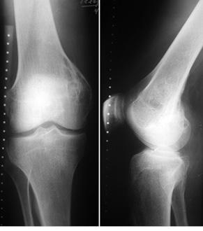 Костная аллопластика прихирургическом лечении пациентов сопухолями длинных костей