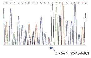 Мутації гена <i>NOTCH1</i> при хронічній лімфоцитарній лейкемії