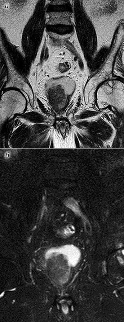 111 Магнітно резонансна томографія вкомплексній променевій діагностиці ракусечового міхура