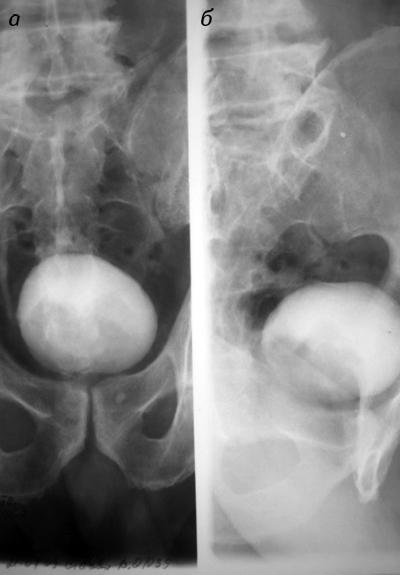 5555 Магнітно резонансна томографія вкомплексній променевій діагностиці ракусечового міхура