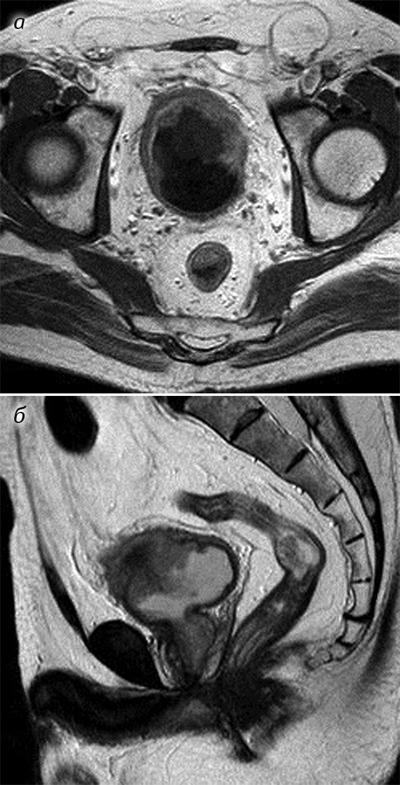 999 Магнітно резонансна томографія вкомплексній променевій діагностиці ракусечового міхура