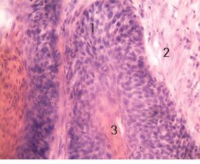 Клінічний випадок одночасного діагностування плоскоклітинного раку і фібросаркоми гортані