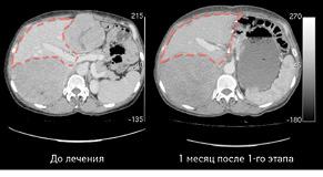 Двохетапна резекція печінки ухворої зметастазами нейроендокринної пухлини. Клінічний випадок