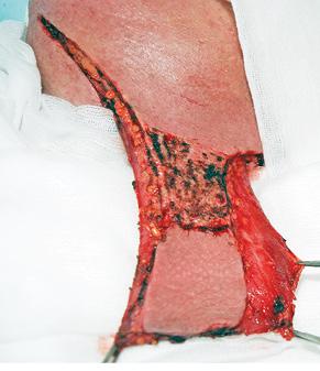 Пластичне усунення дефектів дна порожнини рота шкірно м'язовим клаптем підшкірного м'яза шиї