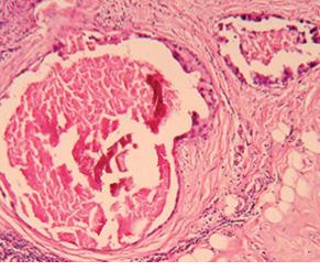 Безпосередні результати комбінації системно селективної неоад'ювантної поліхіміотерапії та магнітотермії укомплексному лікуванні хворих намісцево поширений рак грудної залози