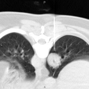 4442131321 Трансторакальная биопсия подконтролем спиральной компьютерной томографии вдиагностике опухолей легких исредостения