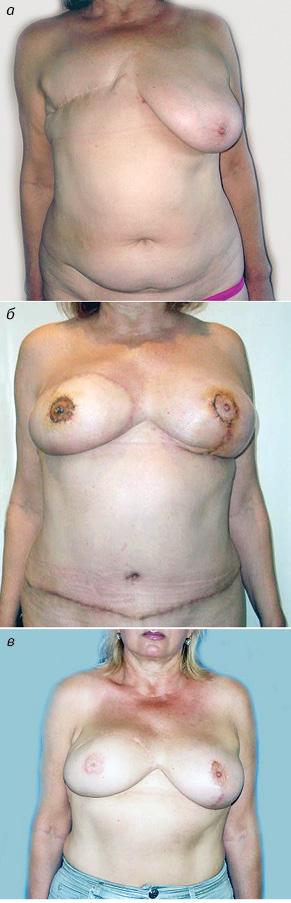 Реконструкция груди сиспользованием свободной пересадки TRAM лоскута вразличных модификациях прираке грудной железы: анализ результатов иосложнений