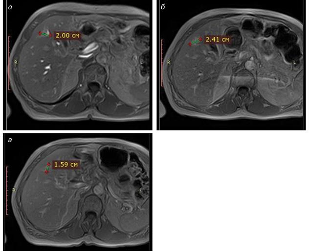 Роль дифузно зважених зображень магнітно резонансної томографії при контролі якості радіохірургічного лікування вторинних пухлинних уражень печінки
