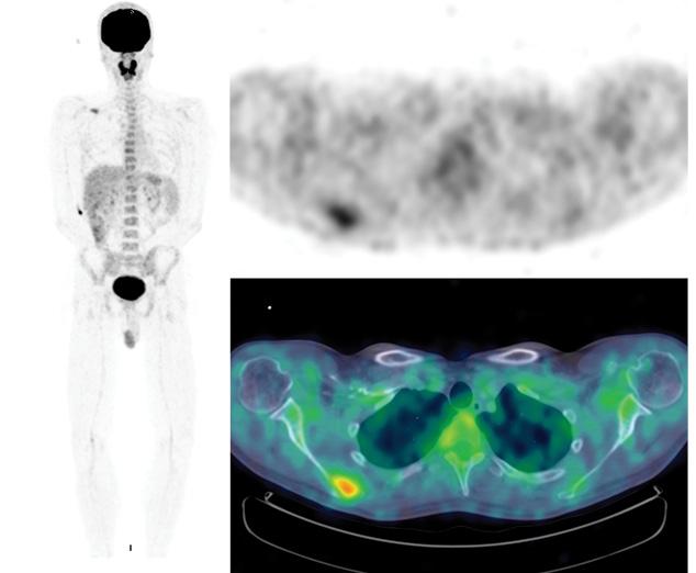 Клинический случай лечения пациента смеланомой сиспользованием чекпойнт ингибитора пембролизумаба (анти PD 1 моноклональное антитело)