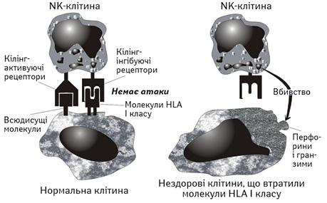 Дефіцит природних кілерів і/або природних кілерних Т лімфоцитів як причина злоякісних новоутворень улюдей (огляд літератури)