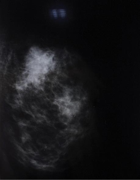 Збереження фертильності упацієнтів зраком грудної залози
