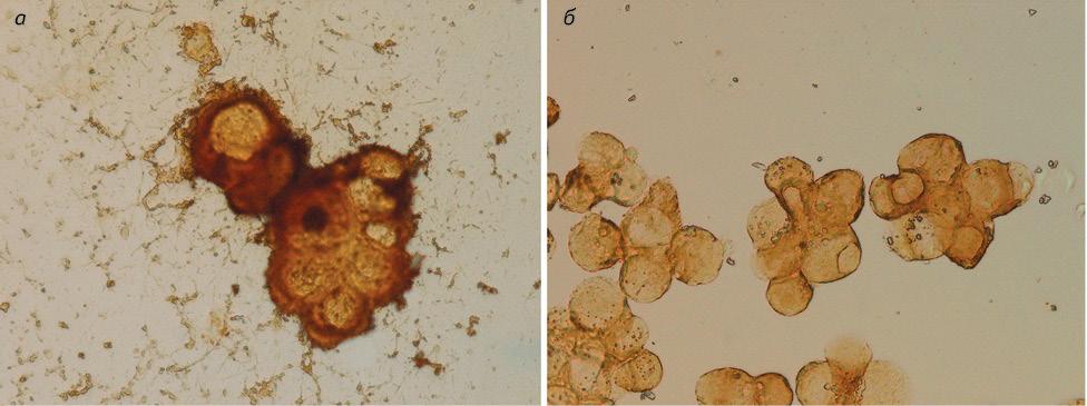Современная дифференциальная цитологическая диагностика аденокарциномы, мезотелиомы иреактивного серозита