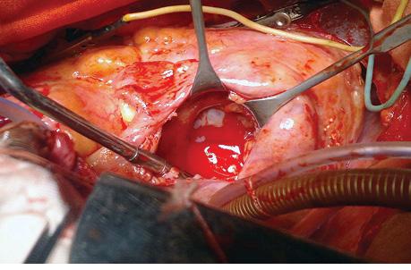 Особенности диагностики ихирургического лечения поражения сердца лимфомой Беркитта