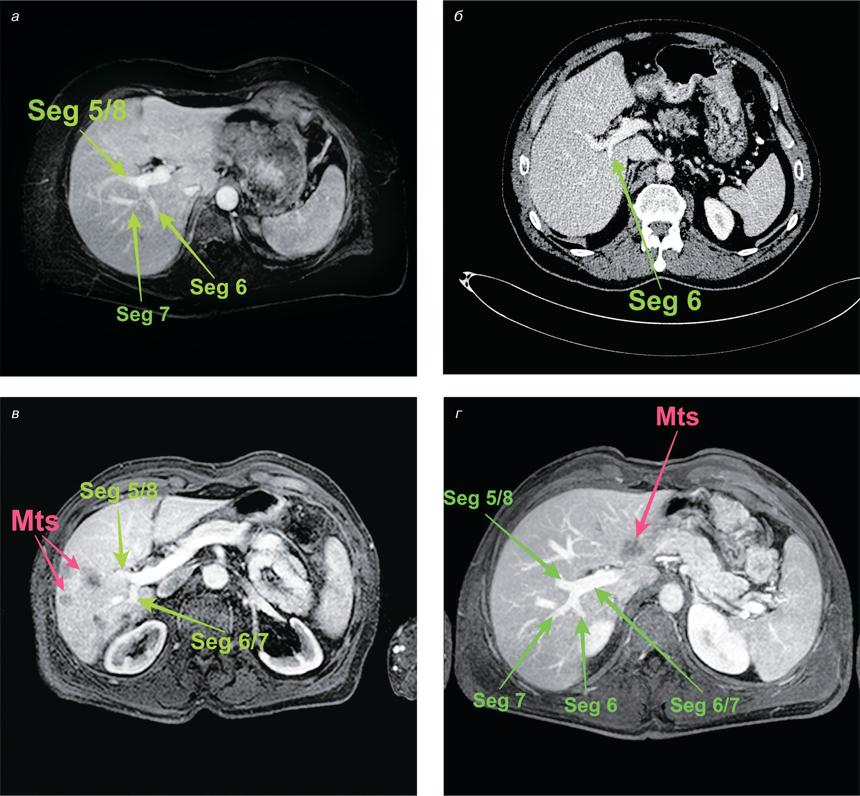 12323523 Врахування анатомії борозни Рув'є вхірургії печінки ухворих наметастатичний колоректальний рак