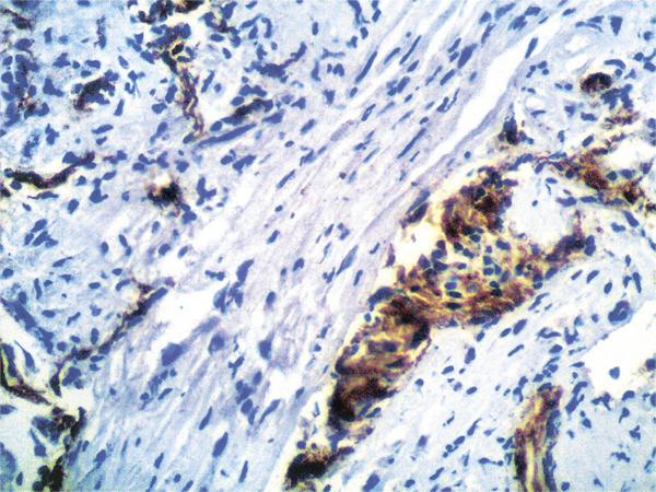22 Иммуногистохимические имолекулярно генетические особенности диффузных астроцитарных опухолей III IV степени злокачественности