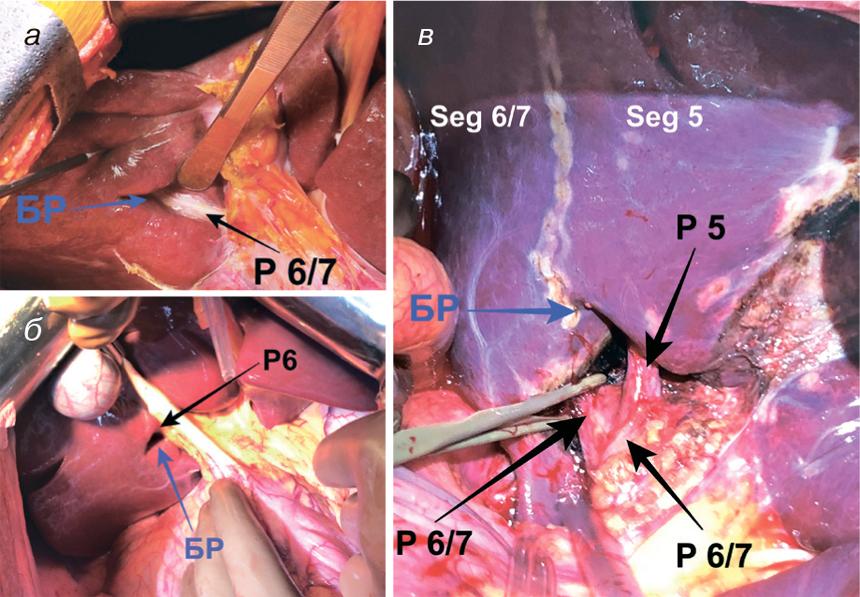 2235345 Врахування анатомії борозни Рув'є вхірургії печінки ухворих наметастатичний колоректальний рак