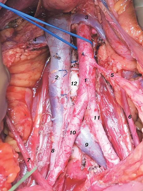699 01 Клінічні рекомендації здіагностики та лікування раку ендометрія