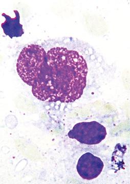 Цитоморфологические особенности первичной медиастинальной В крупноклеточной лимфомы