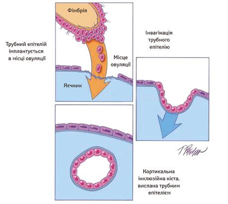 Патогенетичні концепції і лікування серозного раку яєчника початкових стадій насучасному етапі