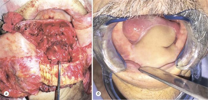 44 Использование надключичного лоскута дляреконструкции послеоперационных дефектов приопухолях головы ишеи