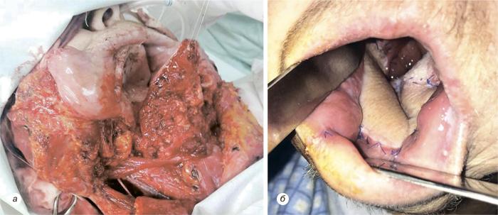 55 Использование надключичного лоскута дляреконструкции послеоперационных дефектов приопухолях головы ишеи