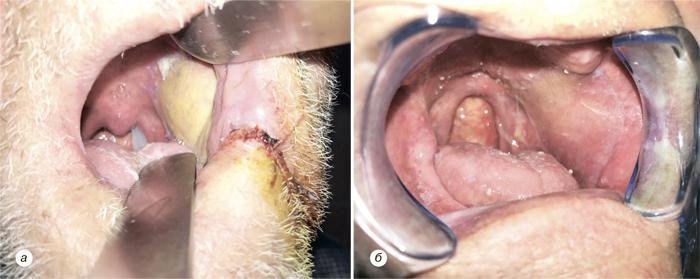 66 Использование надключичного лоскута дляреконструкции послеоперационных дефектов приопухолях головы ишеи