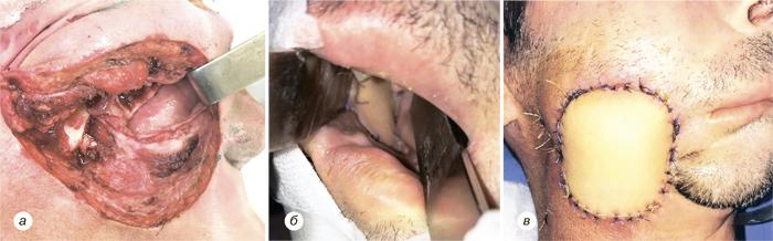 77 Использование надключичного лоскута дляреконструкции послеоперационных дефектов приопухолях головы ишеи