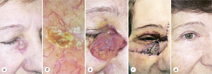 8923859235 Микрографическая хирургия поМосу для лечения больных базально клеточными карциномами высокой степени риска