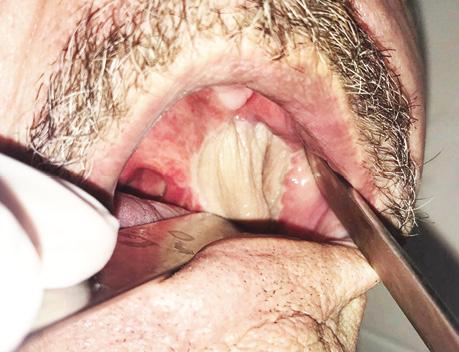 Использование надключичного лоскута дляреконструкции послеоперационных дефектов приопухолях головы ишеи