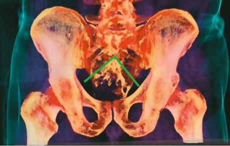 Результати хірургічного лікування хворих зпухлинами крижової кістки завикористання передопераційного 3D моделювання