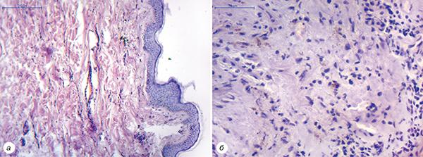 wpid 717 20 d1 80 d0 b8 d1 811 fmt 600 Бульозний пемфігоїд Левера ухворого наметастатичний рак легені після лікування атезолізумабом