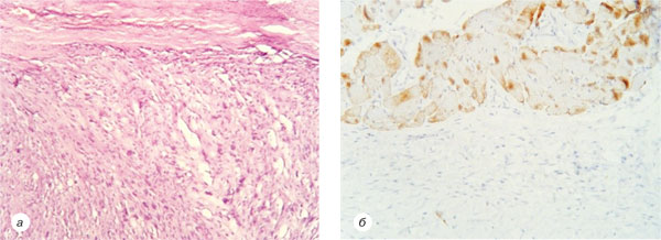 3 Клінічний випадок трансформації дерматофіброми уфібросаркому