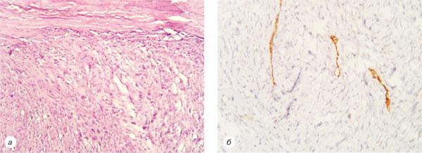 4 Клінічний випадок трансформації дерматофіброми уфібросаркому