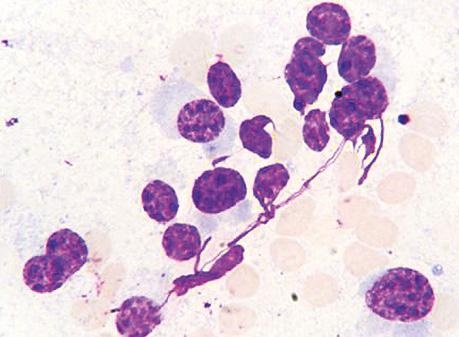 Цитологические особенности плазмоцитомы идифференциальные признаки опухоли Юинга, неходжкинских лимфом ижелезистого рака