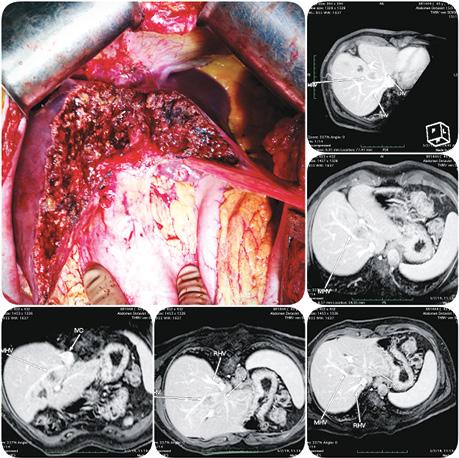 Мультикомпонентна стратегія хірургії білобарного метастатичного ураження печінки колоректальним раком